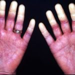 raynaud phenomenon images