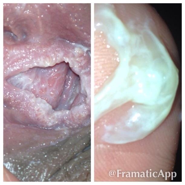 vulva the Rash on