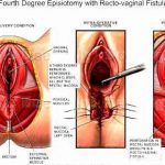 vaginal tear symptoms