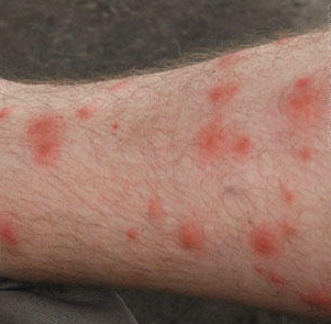 Red Splotches On Legs Not Itchy Pictures Photos