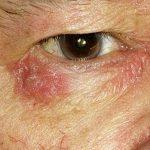 redness skin around eyes