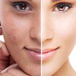 dark spot on skin