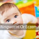 ringworm on babies