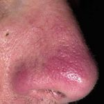 rosacea nose pictures