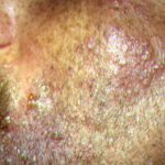 shingles virus picture