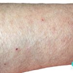 images of scabies rash