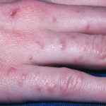 scabies on hands