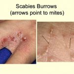 scabies tracks