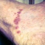 scabies rash image