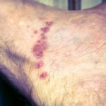 images of scabies rash on humans