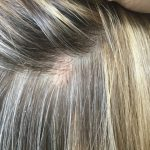 flesh colored bumps on scalp
