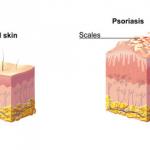 scales rash