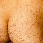 genital herpes looks like