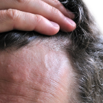 seborrheic dermatitis face treatment