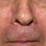 dermatitis seborrhea