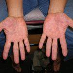 freckles on hands
