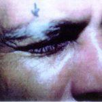 alezzandrini syndrome