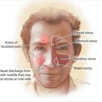 headache in eyebrow
