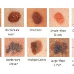 skin cancers pictures early stages