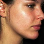 skin infections on face