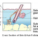 sweat gland tumors