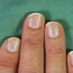 finger skin