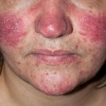 rosacea photos