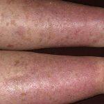 stasis dermatitis pictures