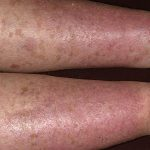 pictures of stasis dermatitis