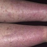 hyperpigmentation on legs
