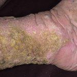 stasis ulcer