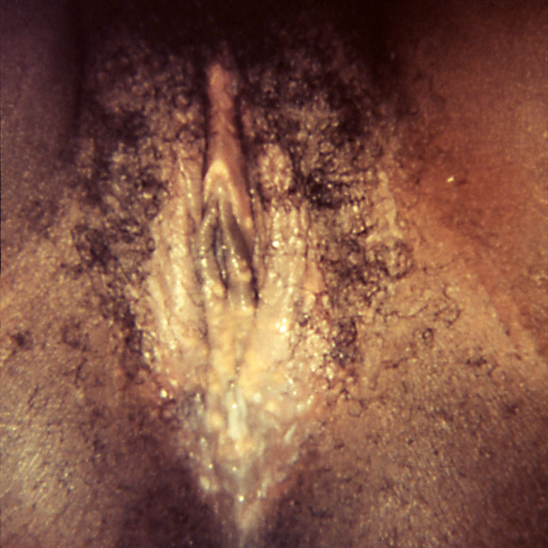 Herpes 2 Symptoms In Men - Pictures, Photos-5721