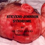 steven johnson syndrome early signs