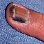 subungual melanomas
