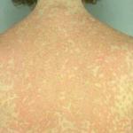allergy to sulfa