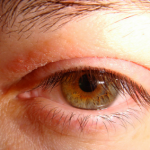 eyelids itch