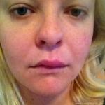 swelling of lip