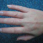 fingertips eczema