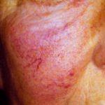 telangiectasias causes