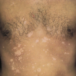 tinea versicolor treatments