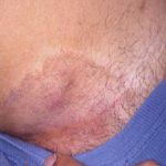 tinea cruris treatments