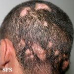 tinea cruris treatment