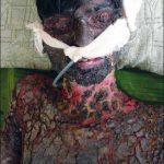 stevens johnson syndrome toxic epidermal necrolysis