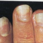 fingernails lifting from nail bed