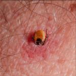 arthropod bite