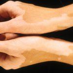 skin pigment diseases
