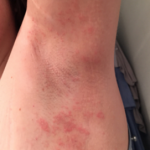 rash on toddlers arm