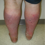 chronic venous insufficiency pictures