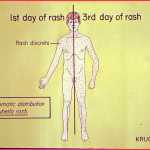 rash and fever in adults