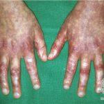 rothmund thomson syndrome